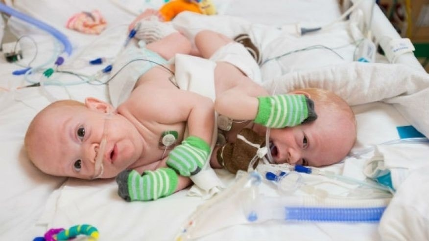 Conner and Carter Mirabal are pictured before their separation surgery.