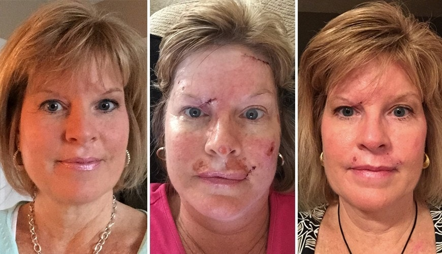 Woman Shares Skin Cancer Photos To Show Effects Of Tanning