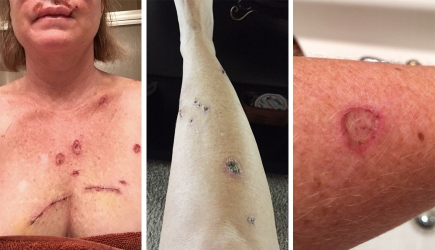 effects of skin cancer Accurate up-to-date information on the cost impact of treating and managing skin  cancer more importantly, skin cancer is one of the most preventable cancers5.