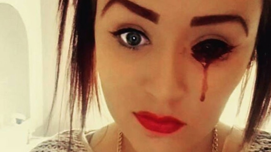 Marnie-Rae Harvey, 17, bleeds from her eyes and ears up to five times per day, but doctors cannot figure out why.