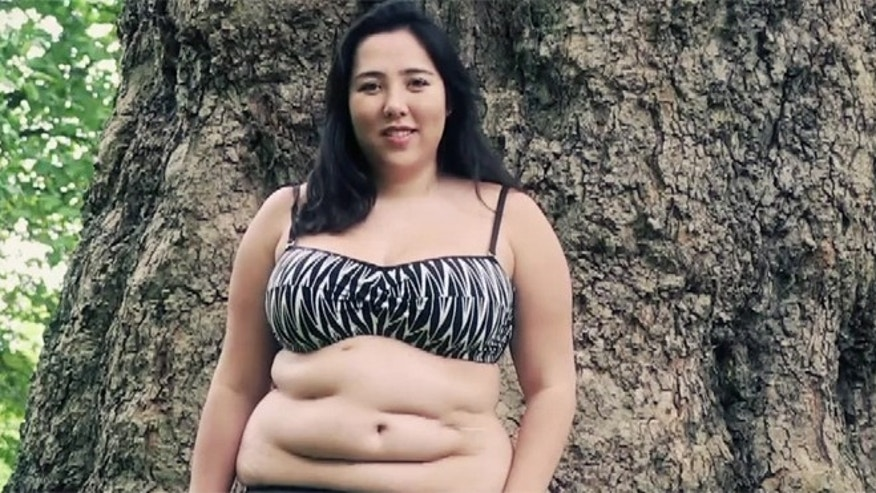 Michelle Elman, 21, created an inspirational video to help others shed the shame of their scars.