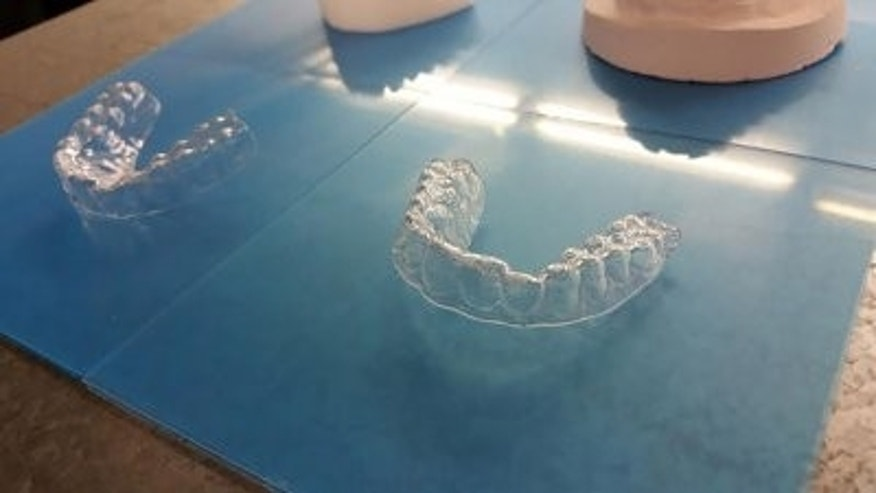 Amos Dudley's 3-D printed braces
