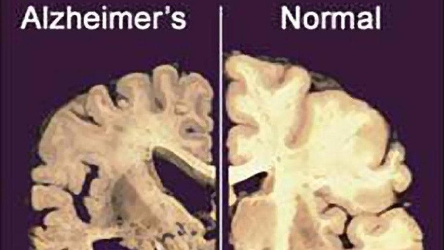 This image shows a cross section of a normal brain, right, and one of a brain damaged by advanced Alzheimer's disease.