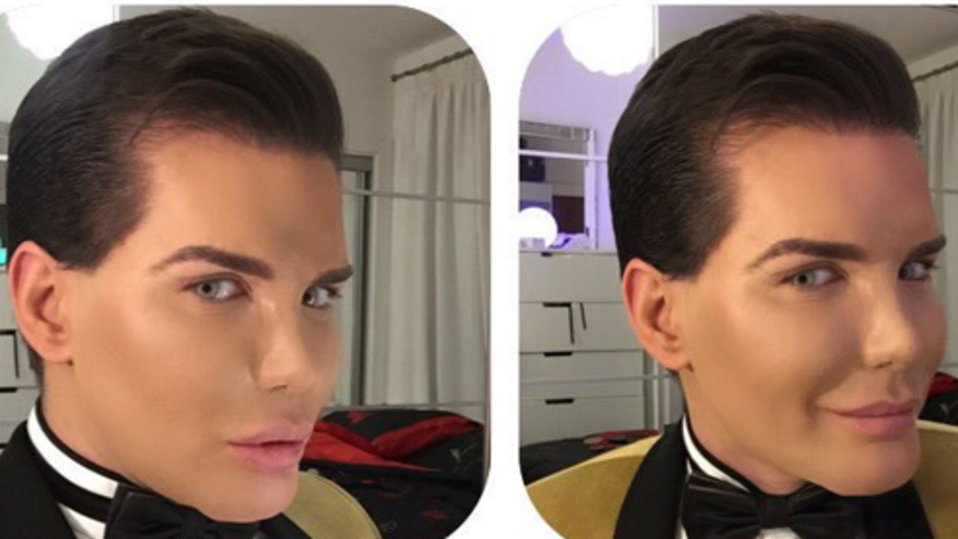 Mentally ill'Human Ken Doll'who spent & # x24; 400G on plastic surgery suffering from rotting nose