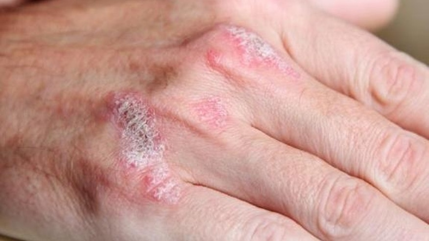 Skin condition linked to risk of aneurysm