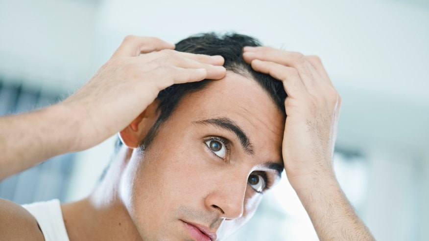 man thinning hair istock