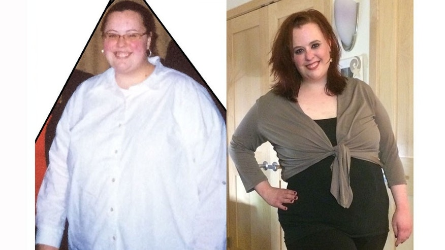 'Having Weight Loss Surgery Was A Huge Mistake': One Woman's Tale Of Craving | Fox News