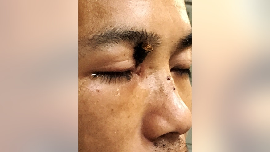 Doctors remove 7-inch tree branch from man's eye socket
