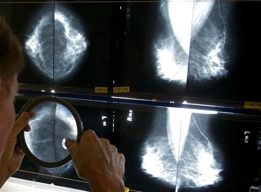 How much palliative care breast cancer patients get may depend on race | Fox News
