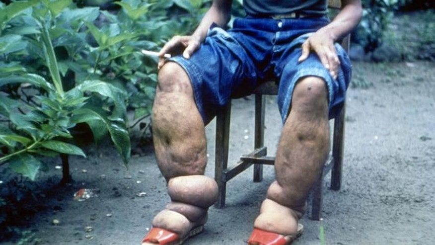 This CDC photo, from 1962, shows a man in the Philippines with elephantiasis of the lower limbs.