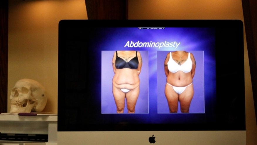 A computer screen shows before and after photos of an abdominoplasty patient after the patient had massive weight loss due to bariatric surgery