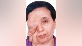 Pic shows:  Samira Benhar before surgery.