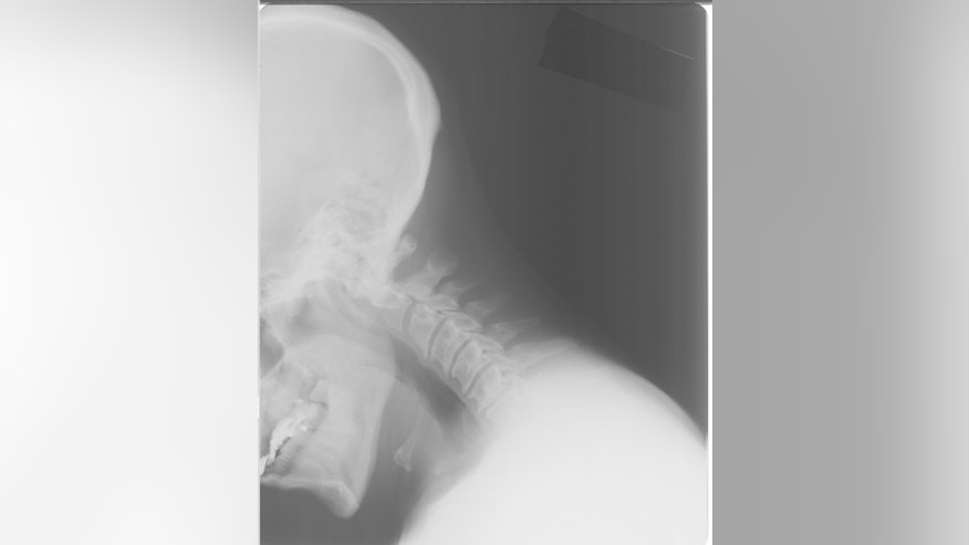 A neck X-ray image