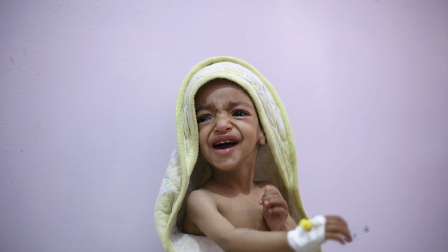 A malnourished boy cries as he sits on a bed at a malnutrition intensive care unit in Yemen's capital Sanaa