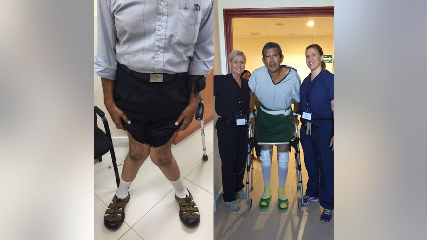 Operation Walk Mooresville team members with patient with a bilateral valgus deformity from Operation Walk Mooresville's 2016 trip to Nicaragua. On the left, the patient is pictured the day before surgery. On the right, the patient is up and walking the day of surgery. (image courtesy Dr. Keith Berend)