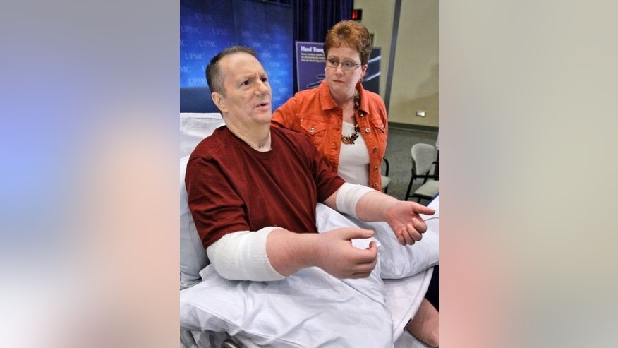 Jeff Kepner is pictured after his 2009 double hand transplant.