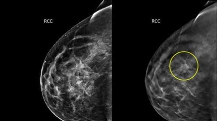 This undated combination provided by Hologic shows an image taken using conventional mammography, left, and an image using a 3D mammography, right, with a tumor circled that wasn���t visible on the first image.