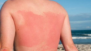 """A man with sunburn on the beach, the skin burnt where lotion didn't reach"""