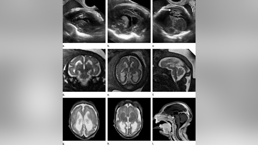 Images obtained in the case of a 33-year-old woman who had a rash at 10 weeks of pregnancy, with confirmed Zika virus infection. US performed at 19 weeks of gestational age showed a head circumference in the normal range (16.6 cm).