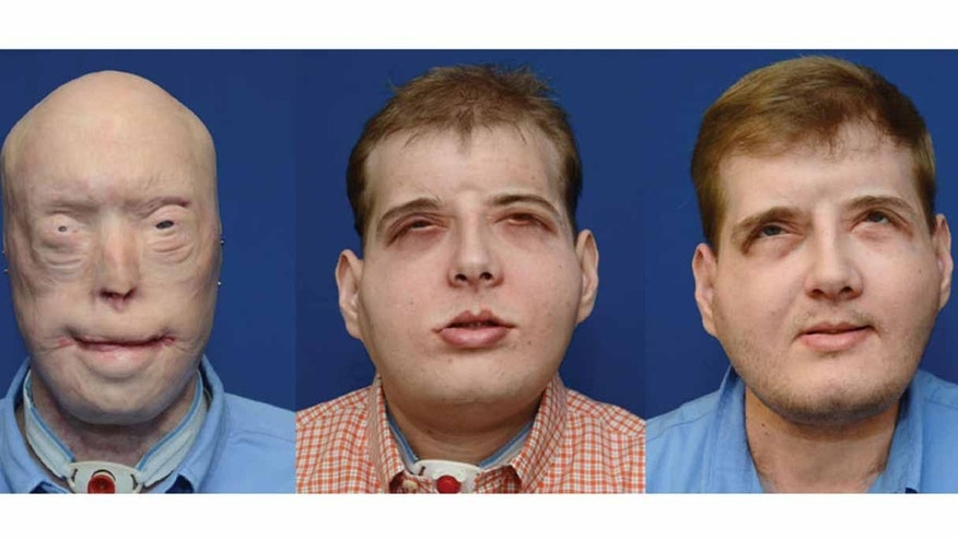 "Patrick Hardison is ""thriving""  one year after the most extensive face transplant ever performed. From left to right, Hardison before surgery, five months after surgery, and one year after surgery."