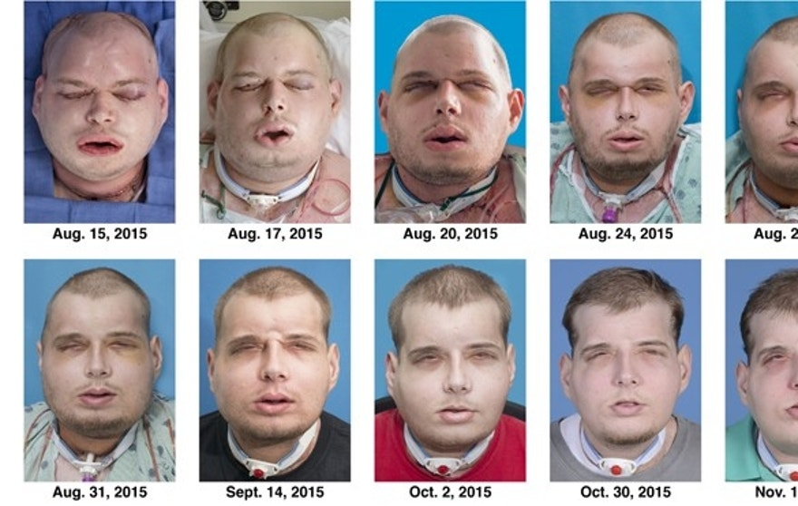 This combination of Aug. 15, 2015 to Nov. 11, 2015 photos provided by the New York University Langone Medical Center shows the recuperation of Patrick Hardison after his facial transplant surgery in New York.