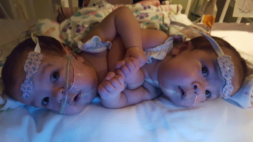 FL conjoined twins 1