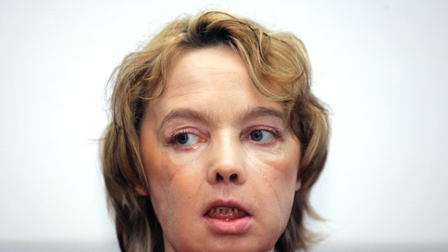 In this Feb. 6, 2006 file photo, Isabelle Dinoire, the woman who received the world's first partial face transplant with a new nose, chin and mouth, in an operation on Nov. 27, 2005, addresses reporters during her first press conference since the transplant at the Amiens hospital, northern France.