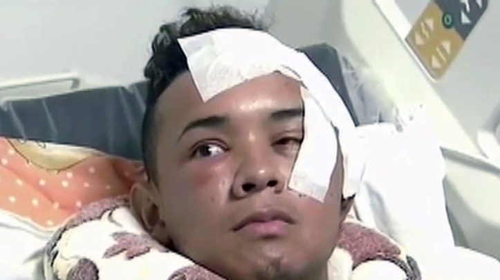 Pic shows: Alberto Palacio in hospital with bandaged wounds
