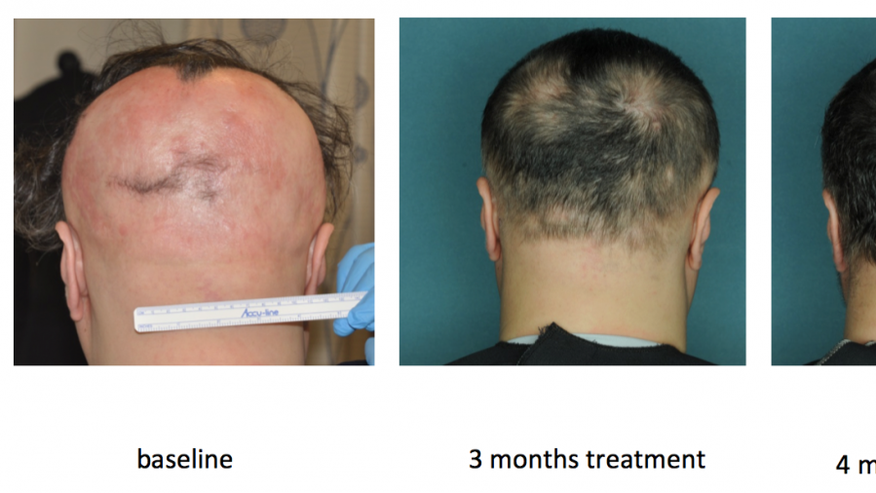 alopecia treatment columbia u