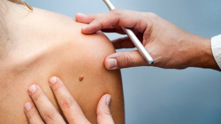 A medical consultation at the Removal of nevus.