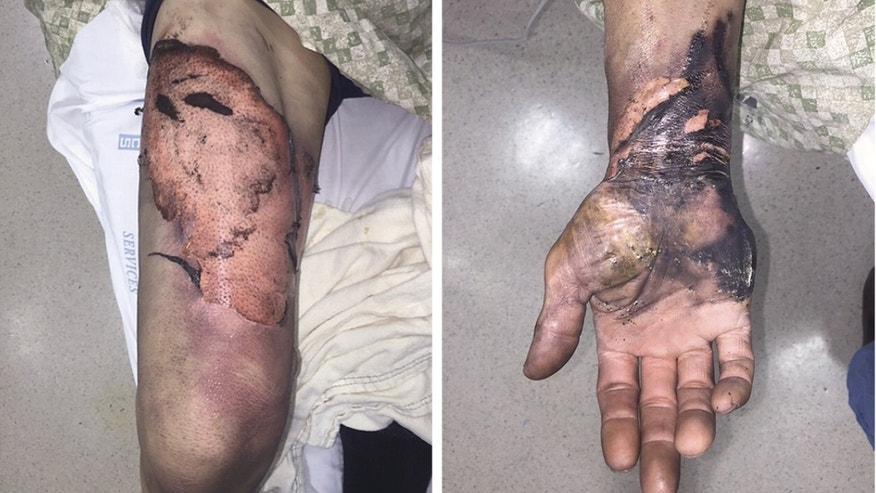 These images show injuries to the thigh and hand that resulted from burns from flames after the lithium-ion battery of an e-cigarette exploded.