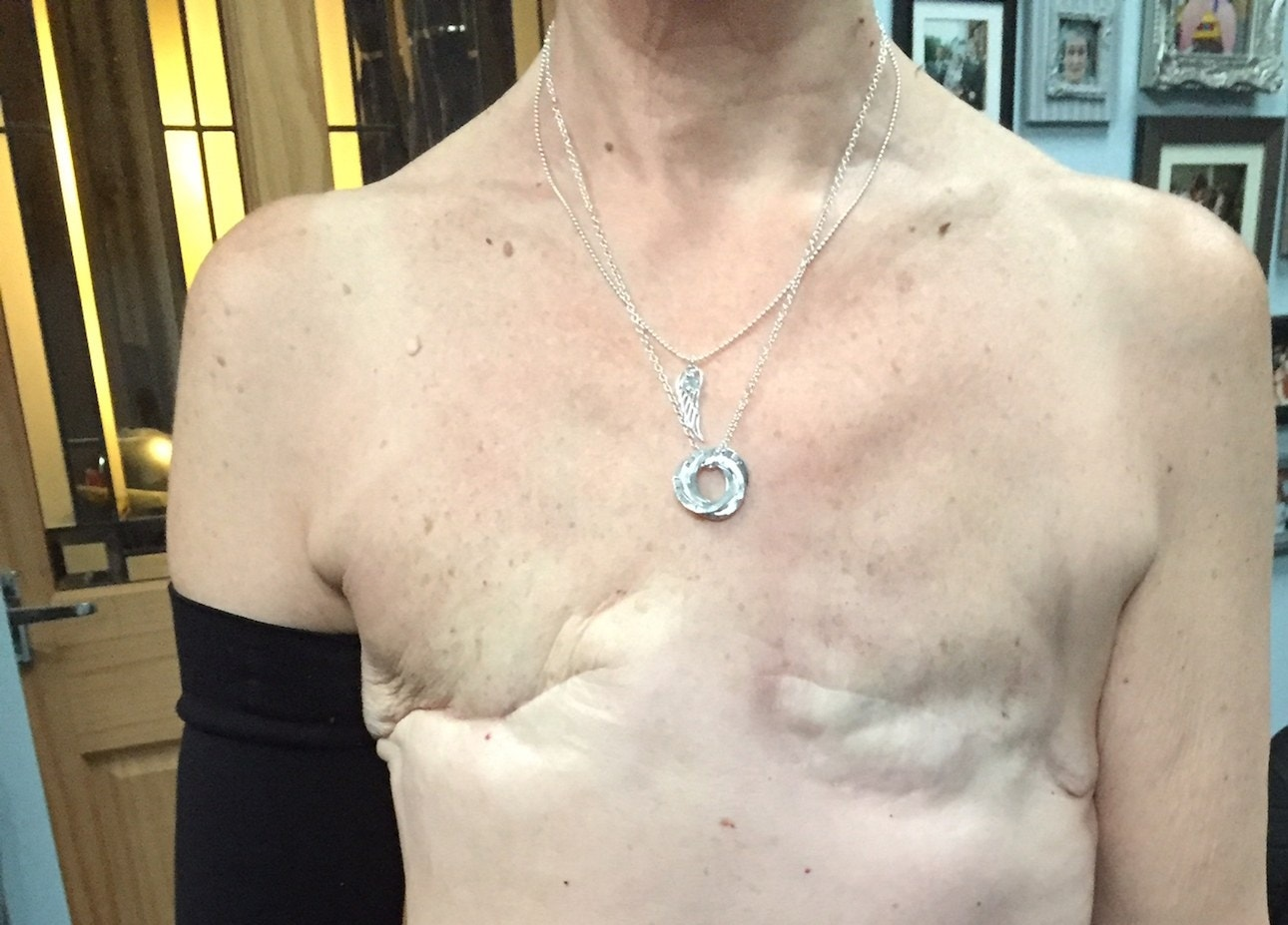 5 years after remission woman gets mastectomy tattoo on for Can you get a tattoo over a scar
