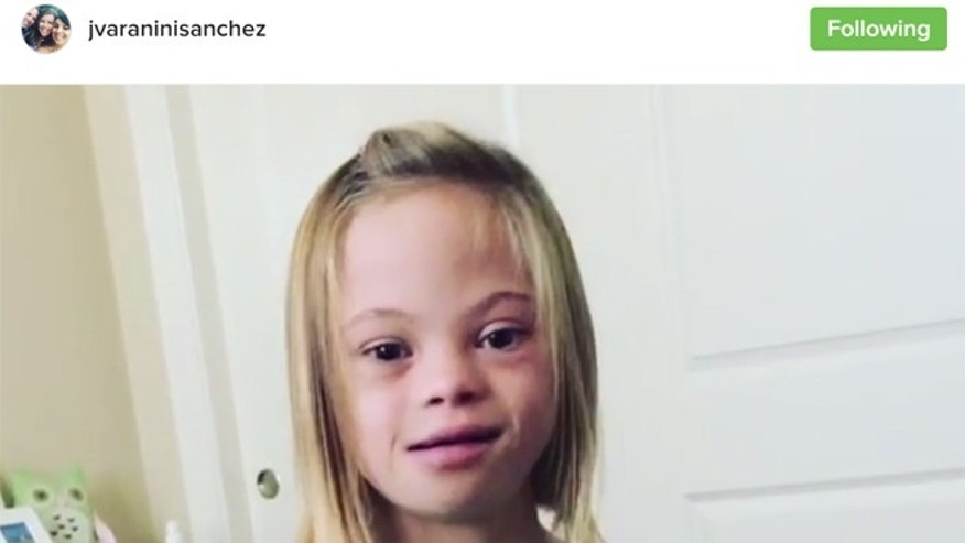 Topless down syndrome girls