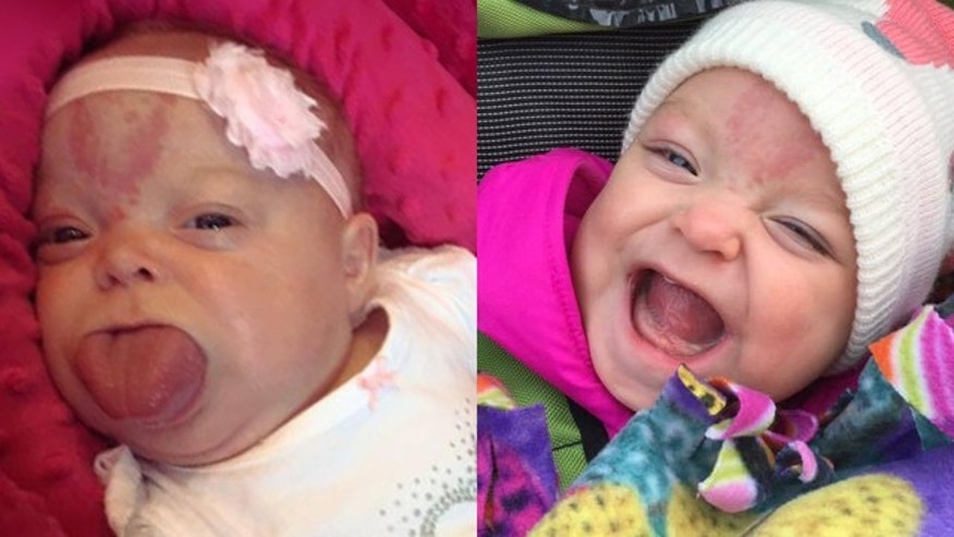 Paisley Kienow is pictured before surgery, left, and after.