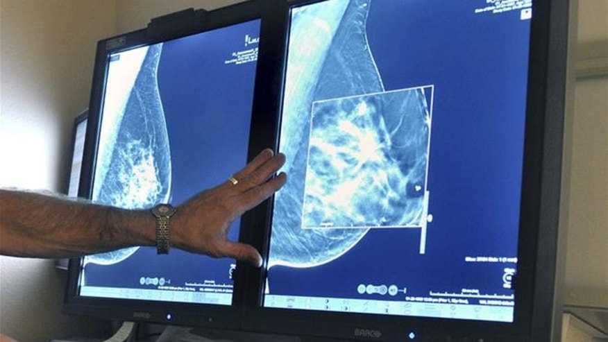 The good news: Some cancers are preventable.
