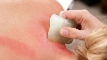Detail showing redness on skin during a gua sha acupuncture treatment