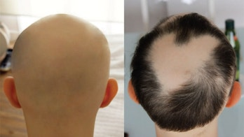 An image of a patient with alopecia universalis, a condition that results in hair loss. On the left, the patient's head before treatment with the drug tofacitinib. On the right, the head after treatment.
