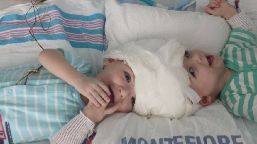 Miracle surgery separates conjoined twins in Palo Alto, California