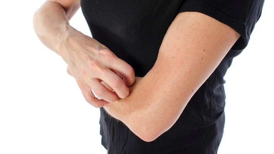 dry_skin_itch_istock
