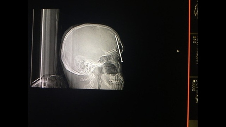 WARNING GRAPHIC IMAGES AHEAD: Nick Thompson accidentally fired a nail gun into his head while framing a closet.