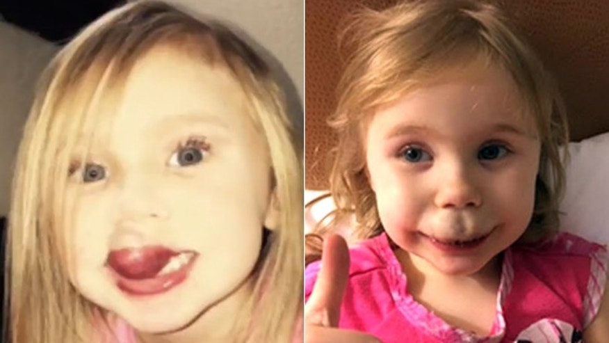 Brianna Brewer, 3, is pictured before her surgery, left, and during recovery, right.