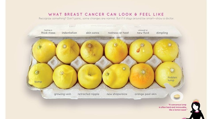 Women uses lemon test to detect her own breast cancer