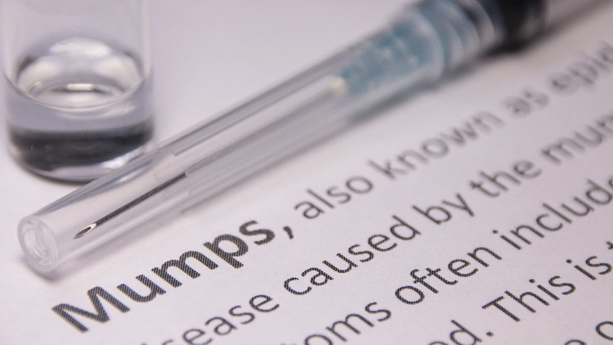 Health District: Number of mumps cases up to 90 in Spokane
