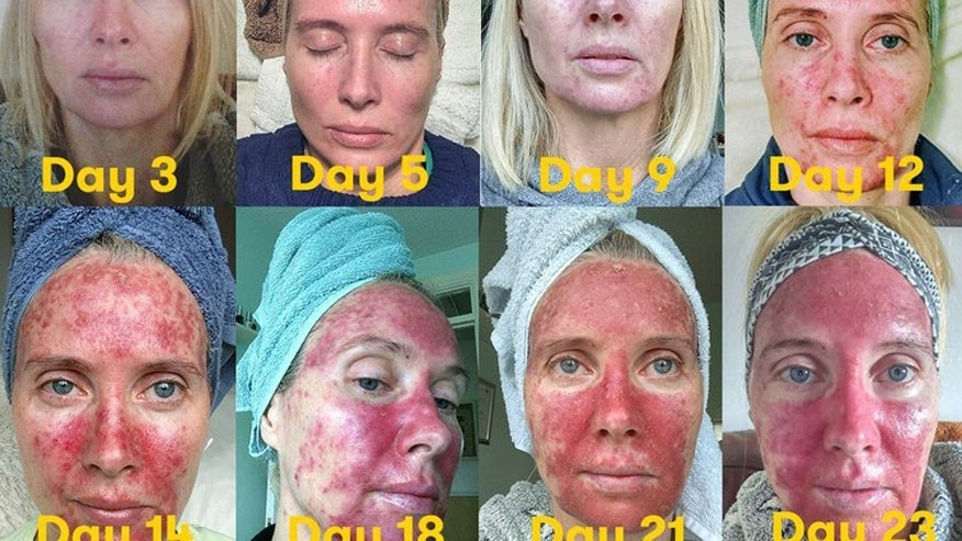 These Graphic Photos Of Skin Precancer Treatment Are A