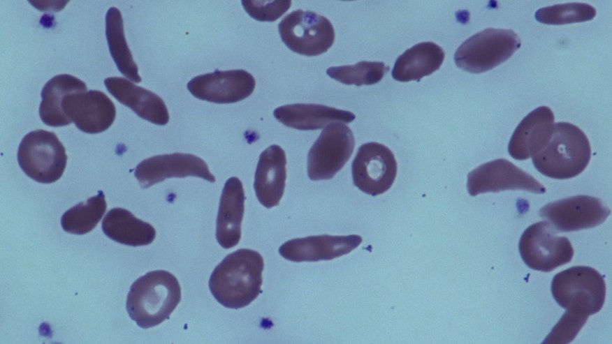 This image provided by the National Institutes of Health shows red blood cells in a patient with sickle cell disease at the National Institutes of Health Clinical Center in Bethesda, Md.