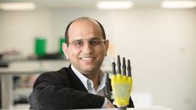 Ravinder Dahiya of the University of Glasgow's School of Engineering poses with the prosthetic hand developed by his team at Glasgow University, Scotland