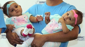 Abel Camacho holds his daughters Bellanie, left, and Ballanie, at Maria Fareri Children's Hospital in Valhalla, N.Y., Friday, March 24, 2017. The sisters, who were joined at the base of the spine when they were born Feb. 4, 2016, were being released from the hospital after a successful 21-hour surgery in Jan. 2017 to separate them. (Seth Harrison/The Journal News via AP)