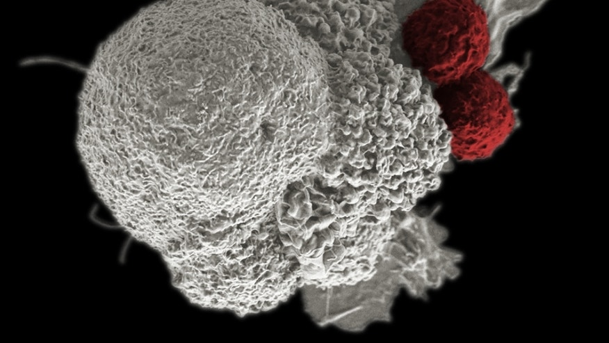 Newer cancer drugs that enlist the body's immune system are improving the odds of survival.