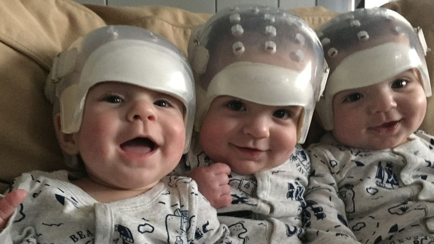 Triplets all undergo surgery for same rare skull condition