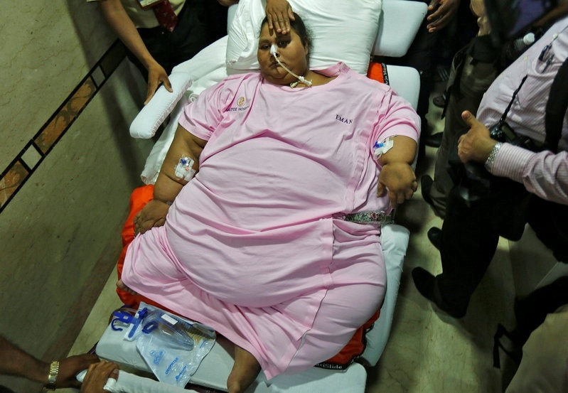 Egyptian Woman Leaves Indian Hospital More Than 650 Pounds Lighter